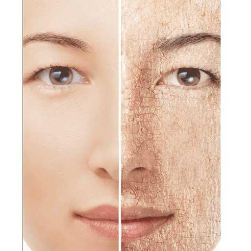 Dry Skin Causes and Solutions